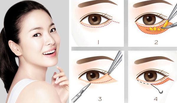 7 cách thoát khỏi mắt sưng nhanh nhất